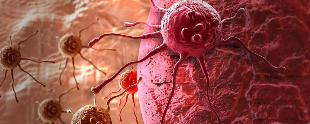 Поговорим о самодиагностике: как понять, что у тебя появился рак?