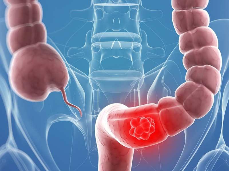 Рак прямой кишки: первые симптомы и признаки, диагностика, методы лечения
