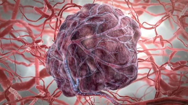 Как умирают от рака: все про больных раком перед смертью
