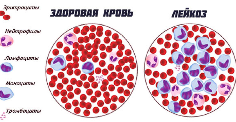 Клетки при лейкозе