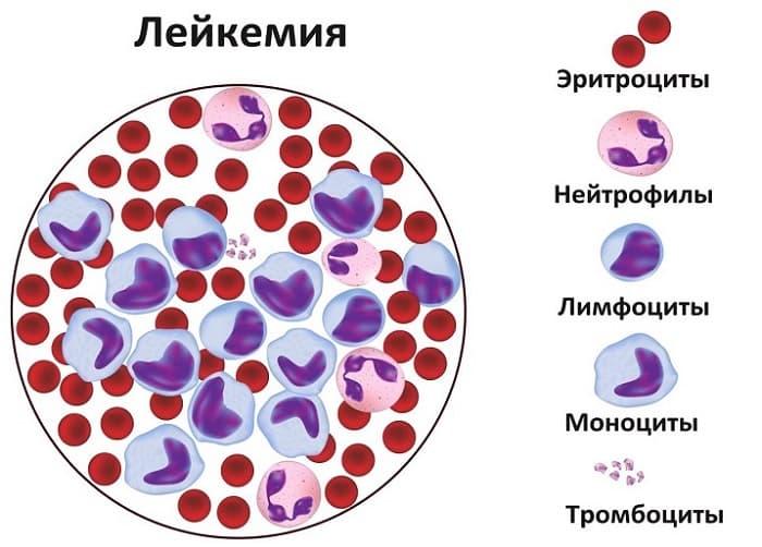 Клетки крови при лейкемии