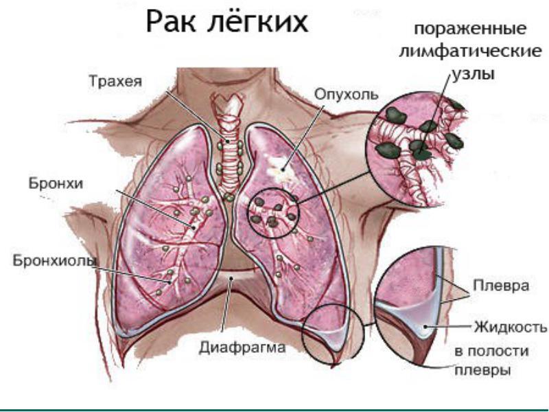 Все про Рак легких: первые симптомы и признаки, стадии, выживаемость