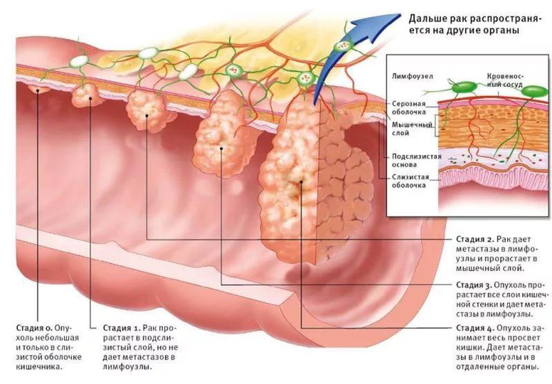 Инфографика по развитию рака