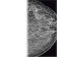 Секреты самого женского рака – рака молочной железы