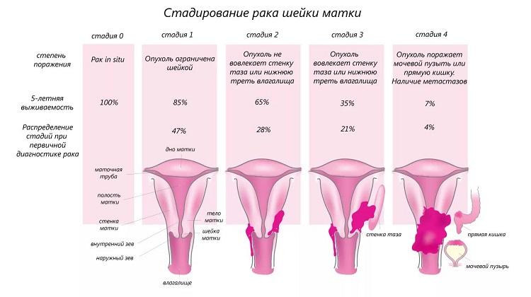 Рак матки: первые признаки и симптомы, диагностика, лечение, выживаемость