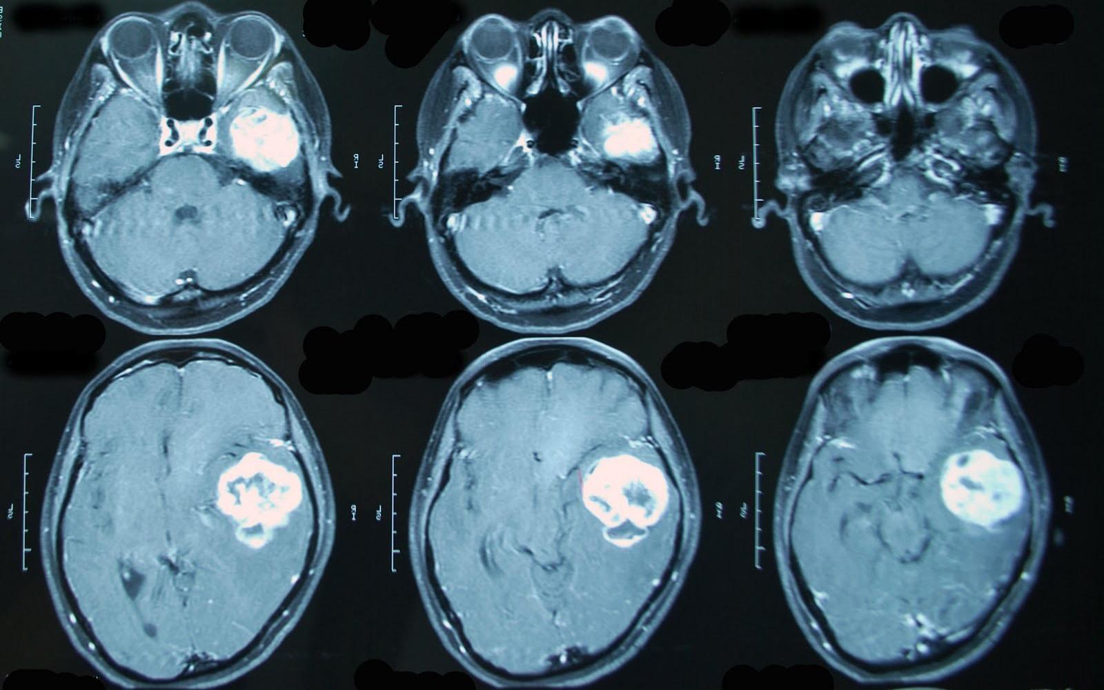 Поговорим о раке мозга: когда болезнь прокралась к самому важному