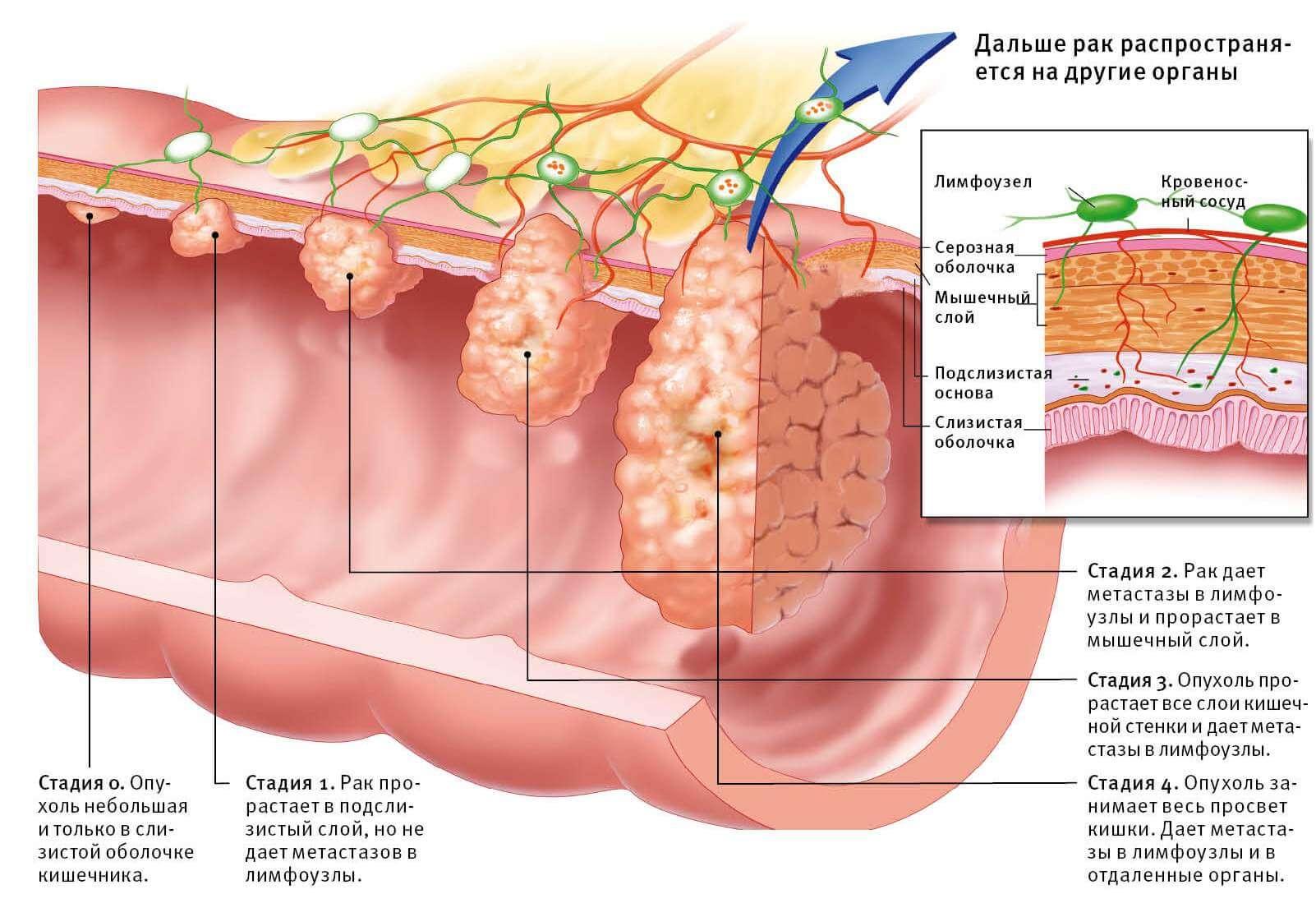Всё про рак кишечника: первые симптомы, диагностика, стадии, выживаемость