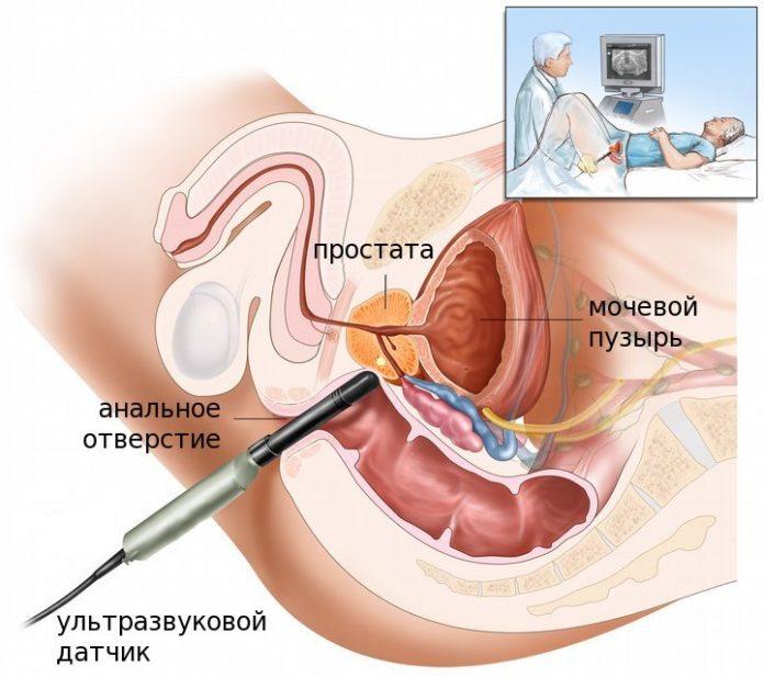 Рак предстательной железы (простаты): все симптомы, диагностика, лечение, выживаемость