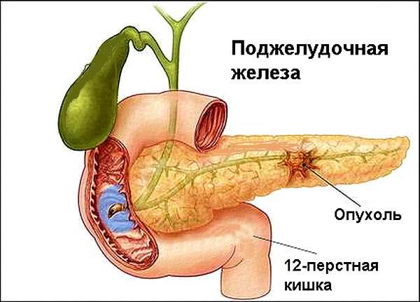 Поджелудочной железы