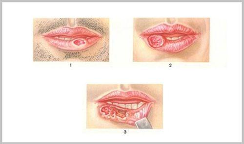 Стадии губ