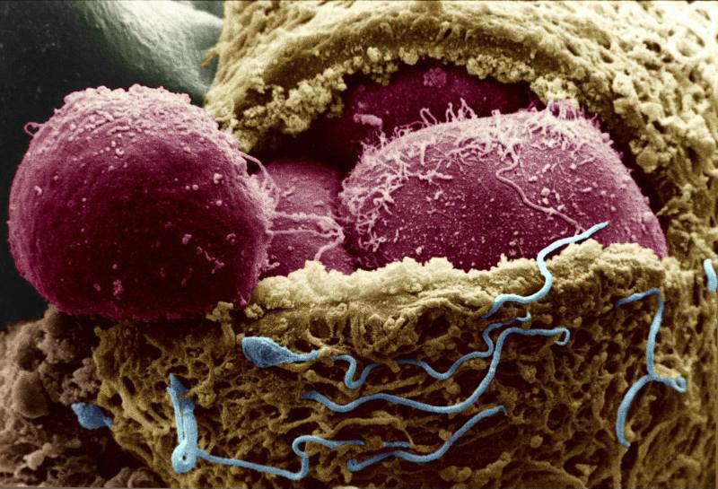 А вы знаете современные теории возникновения раковой опухоли?