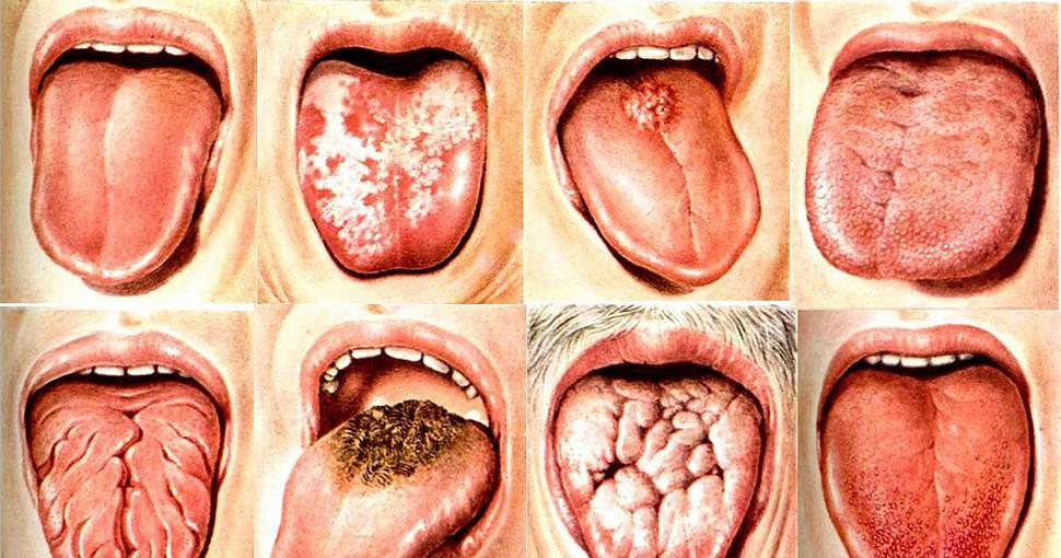 Поговорим о раке языка, или как избежать это заболевание