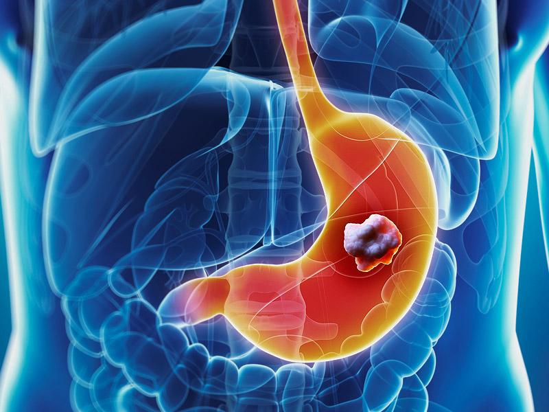 Последняя стадия рака желудка: что делать?