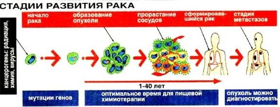 Продолжительность жизни при раке 4 стадии с метастазами