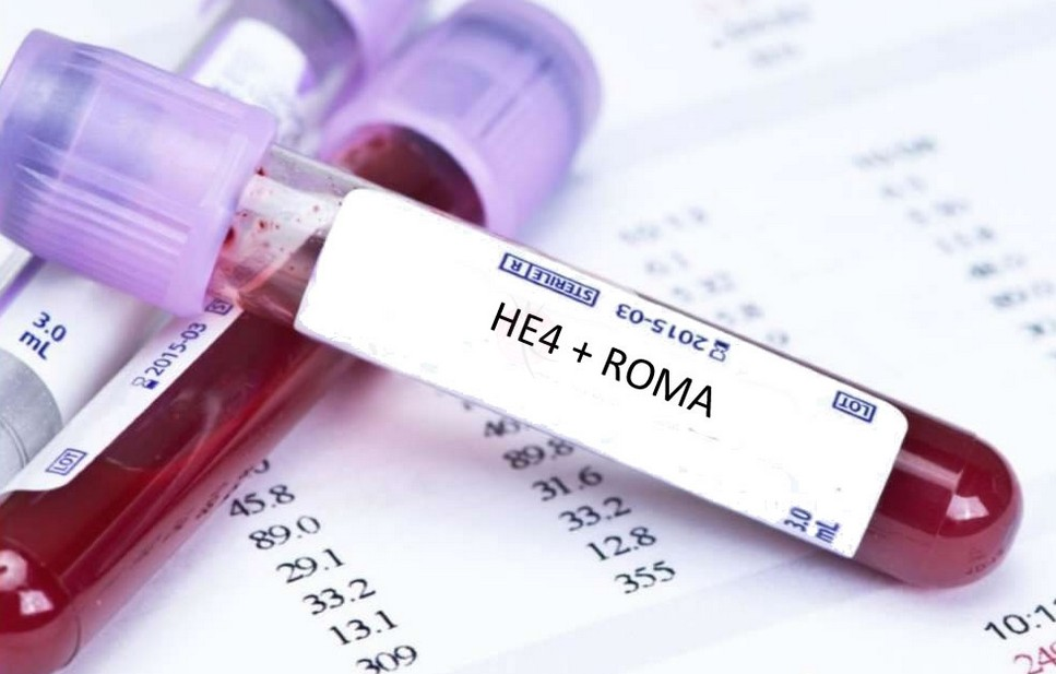 Разбираем очередной онкомаркер: HE 4