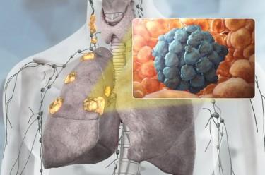 Рак легких на схеме