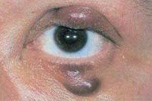 Саркома – еще одна разновидность онкозаболеваний