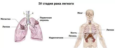 Все о последней стадии рака легких: от проявлений до выживаемости