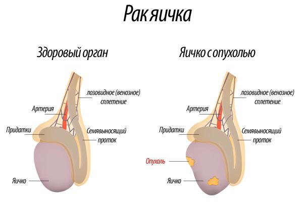 Здоровые и пораженные яички на схеме