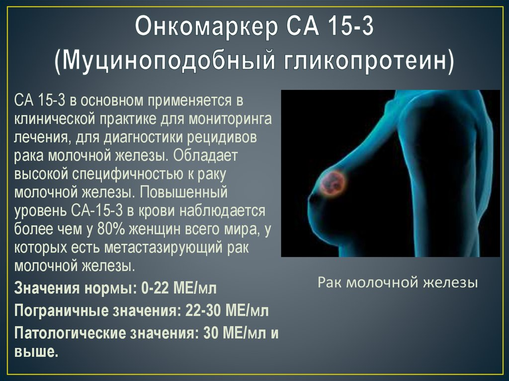 СА 15-3