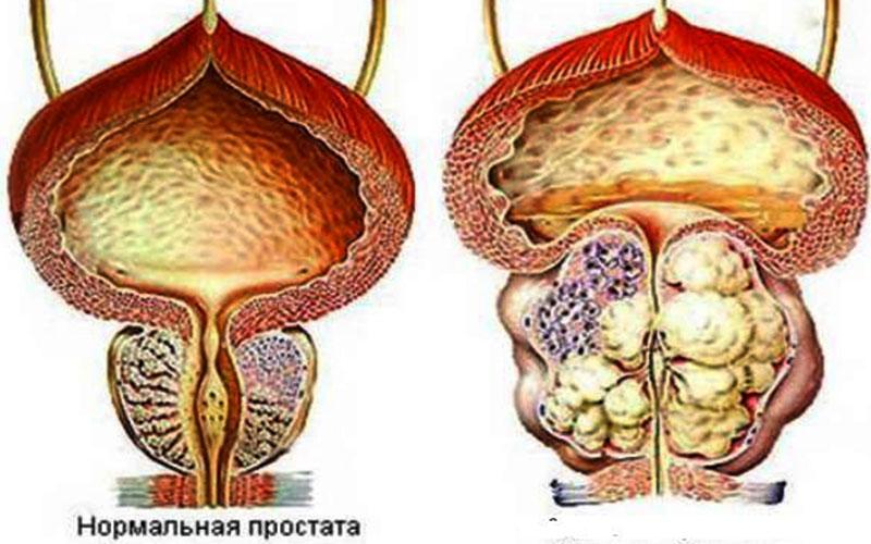 МКБ-10 – C61 – Рак предстательной железы
