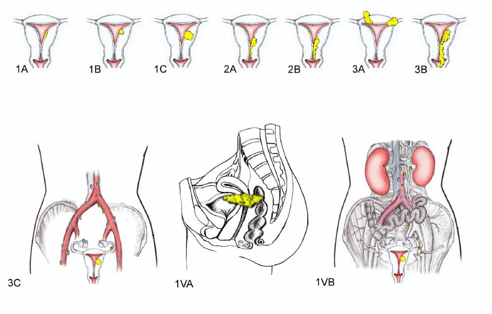 Виды рака шейки матки: плоскоклеточный