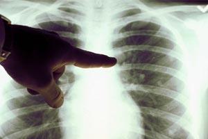 Рентген и флюорография при диагностике рака легких
