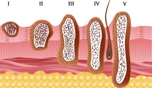 Еще одно опухолевое образование кожи - базалиома