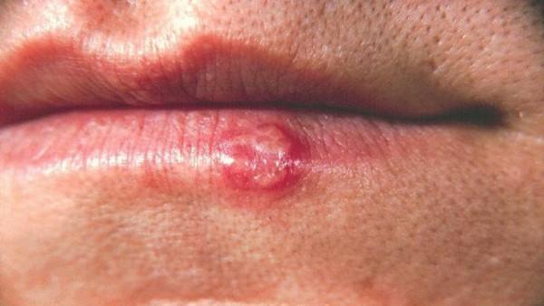 Начальная стадия рака губы выглядит так
