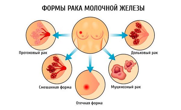 Инфильтративный РМЖ: разбор очередной «молочки»