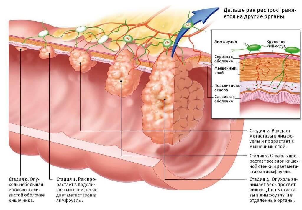 И снова про кишечник: рак сигмовидной кишки