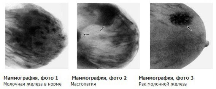 Третья стадия рака молочной железы…
