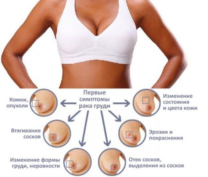 Симптомы грудного рака
