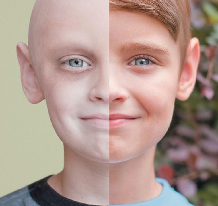 Можно ли вылечить лейкемию, и как этого добиться…