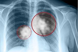 Третья стадия на рентгене