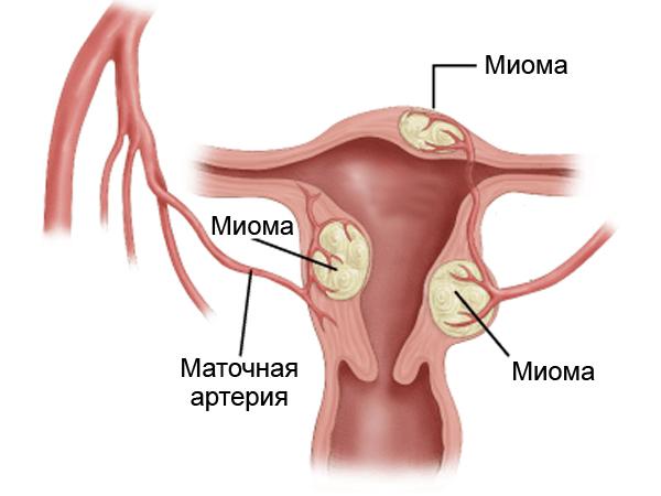 Тяжелая женская доля, или все виды рака у женщин
