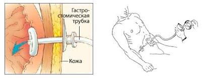Питание через трубочку