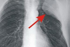 Четвертая стадия на рентгене