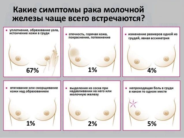 Симптомы груди