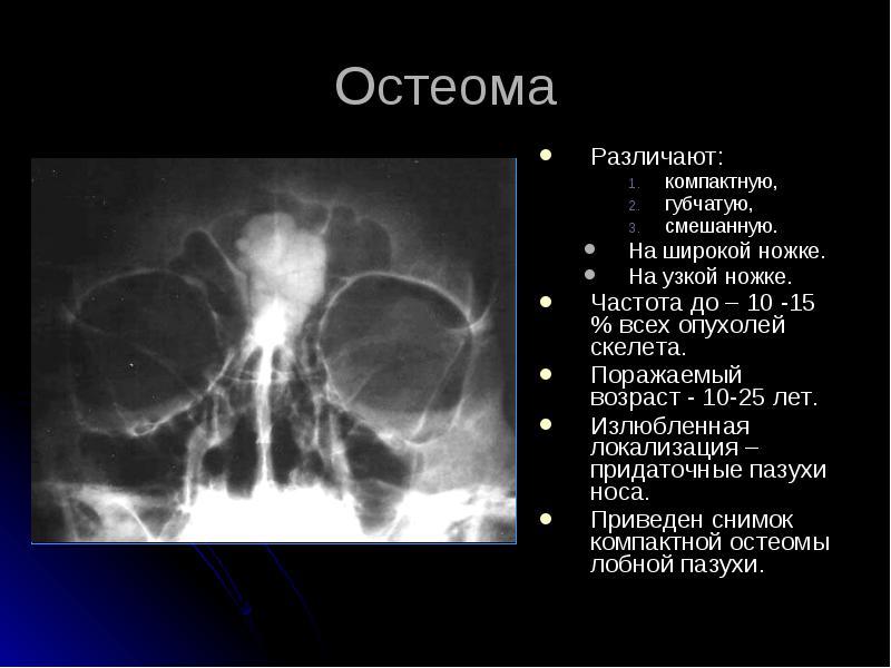 Остеома