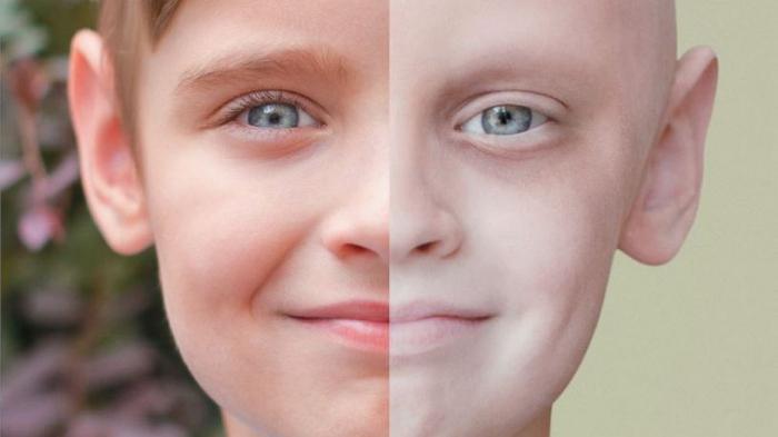 Детский рак – все о страшном заболевании маленьких людей