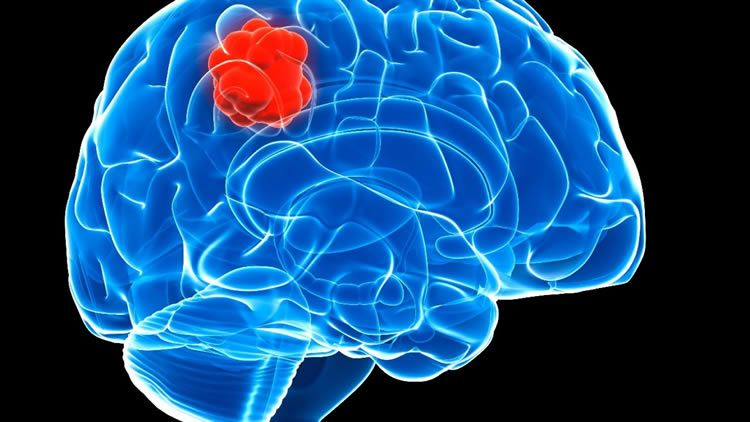 Глиома головного мозга – еще одна онкология мозга
