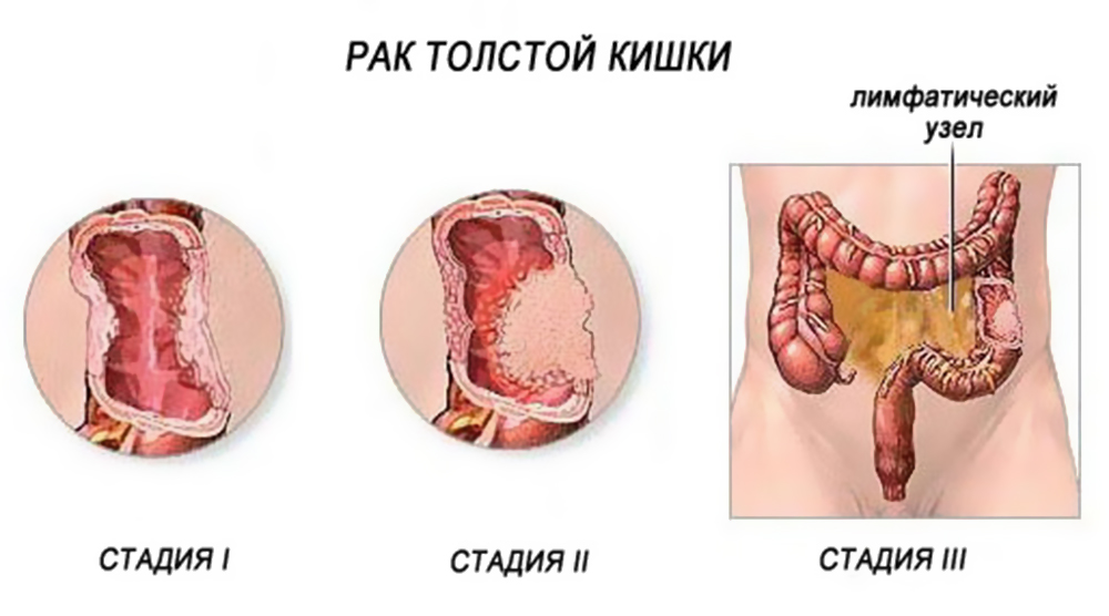 Вся правда о раке ободочной кишки: знай каждый!