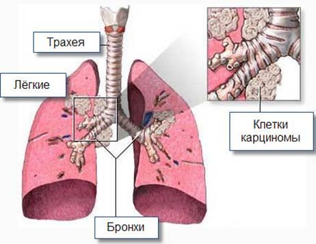 Рак бронхов: еще одна разновидность патологии легких