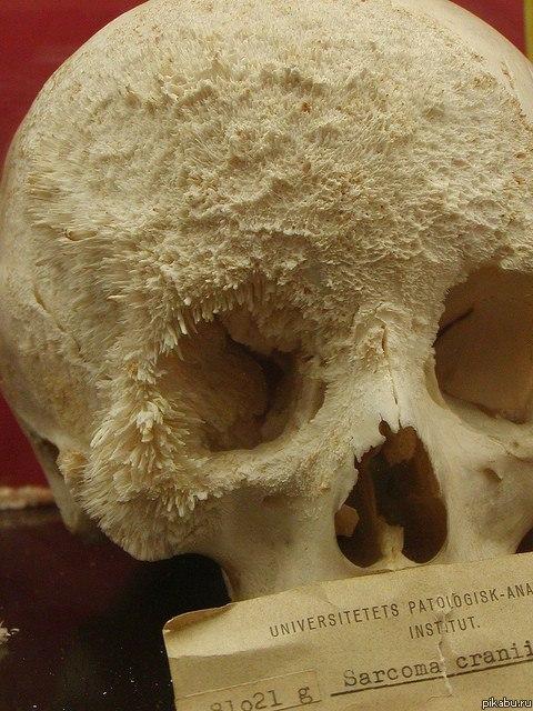 Саркома черепа