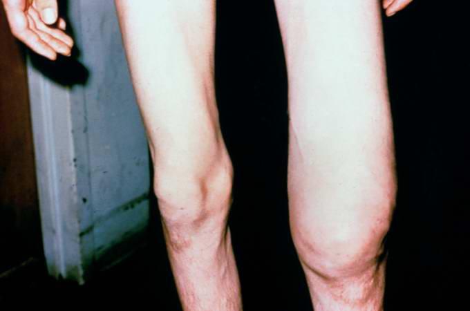 Остеосаркома: все про скрытого разрушителя организма