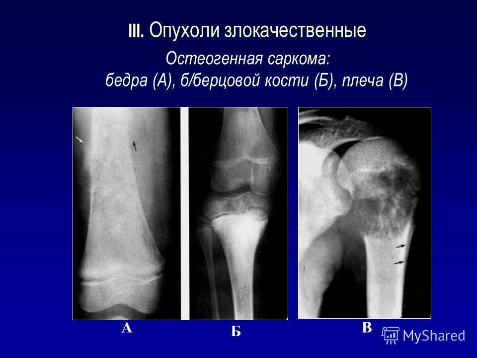 Виды сарком на рентгене