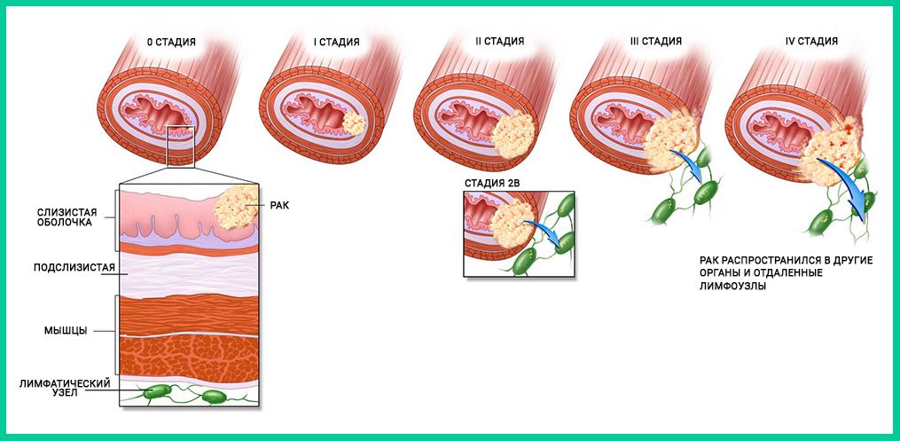 Можно ли вылечить рак пищевода: разбираем по шагам