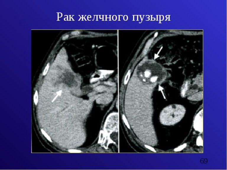Скрытые тайны рака желчного пузыря в одной статье