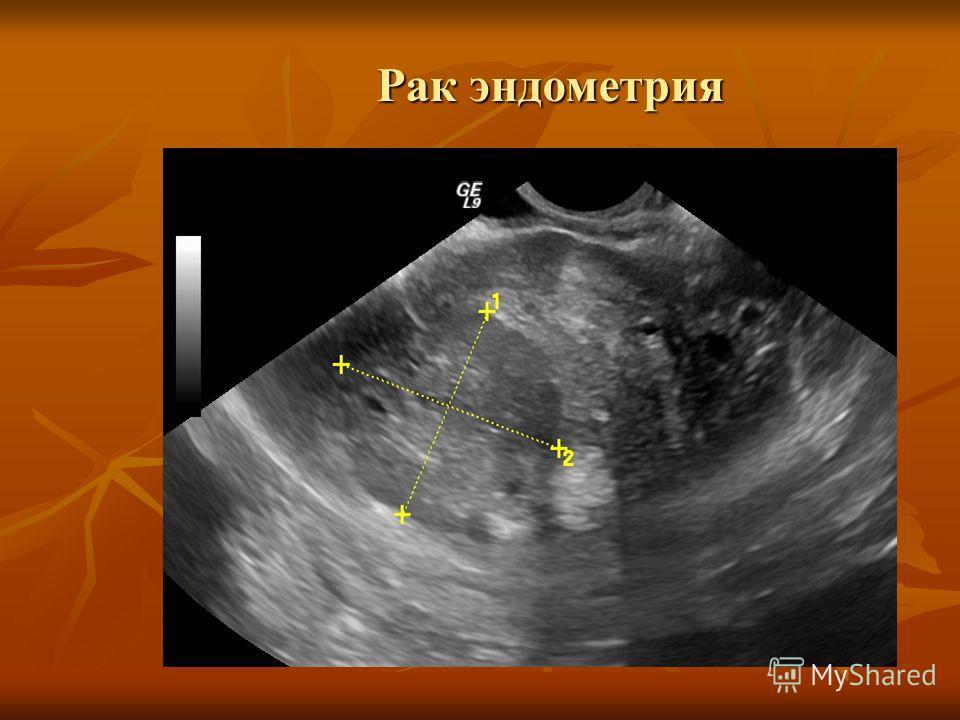 Рак эндометрия: главные тайны и проблемы лечения